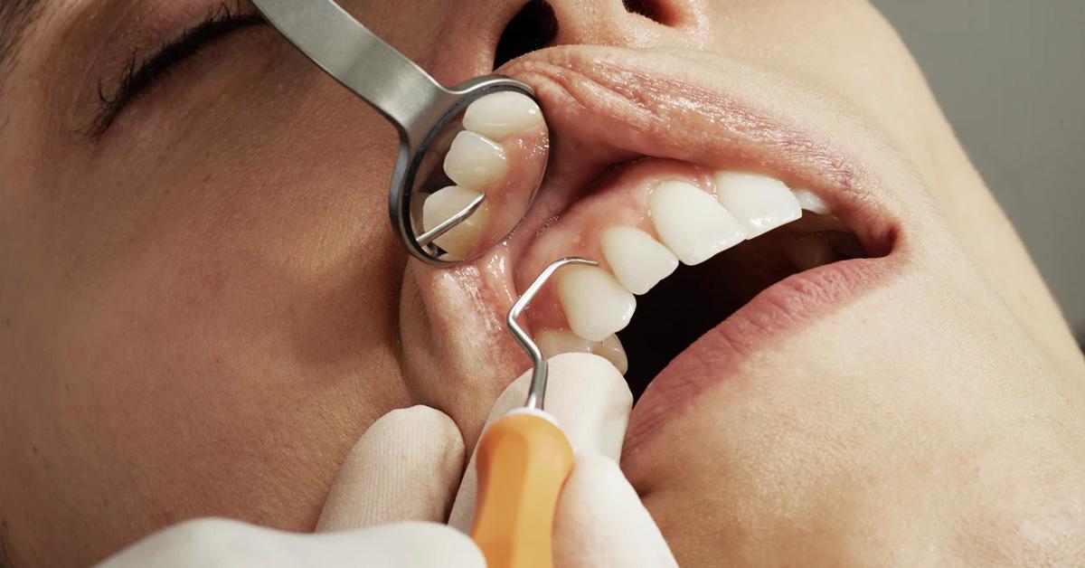 Afecțiunile dentare, legătura cu sănătatea organismului. Ce boli pot ascunde și declanșa